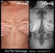 recouvrement cicatrices - poitrine + ventre - 001 S